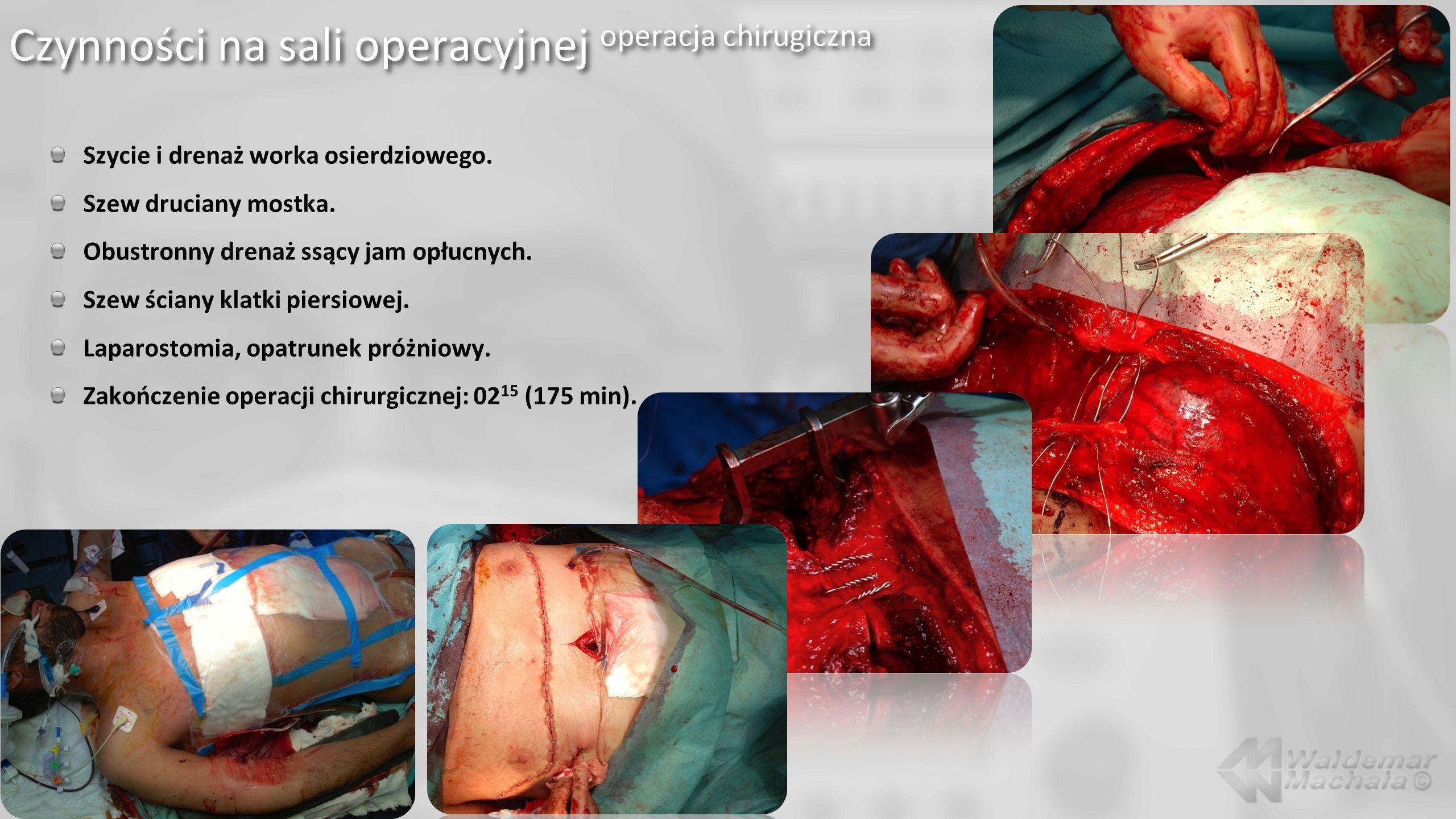 Czynności na sali operacyjnej operacja chirugiczna