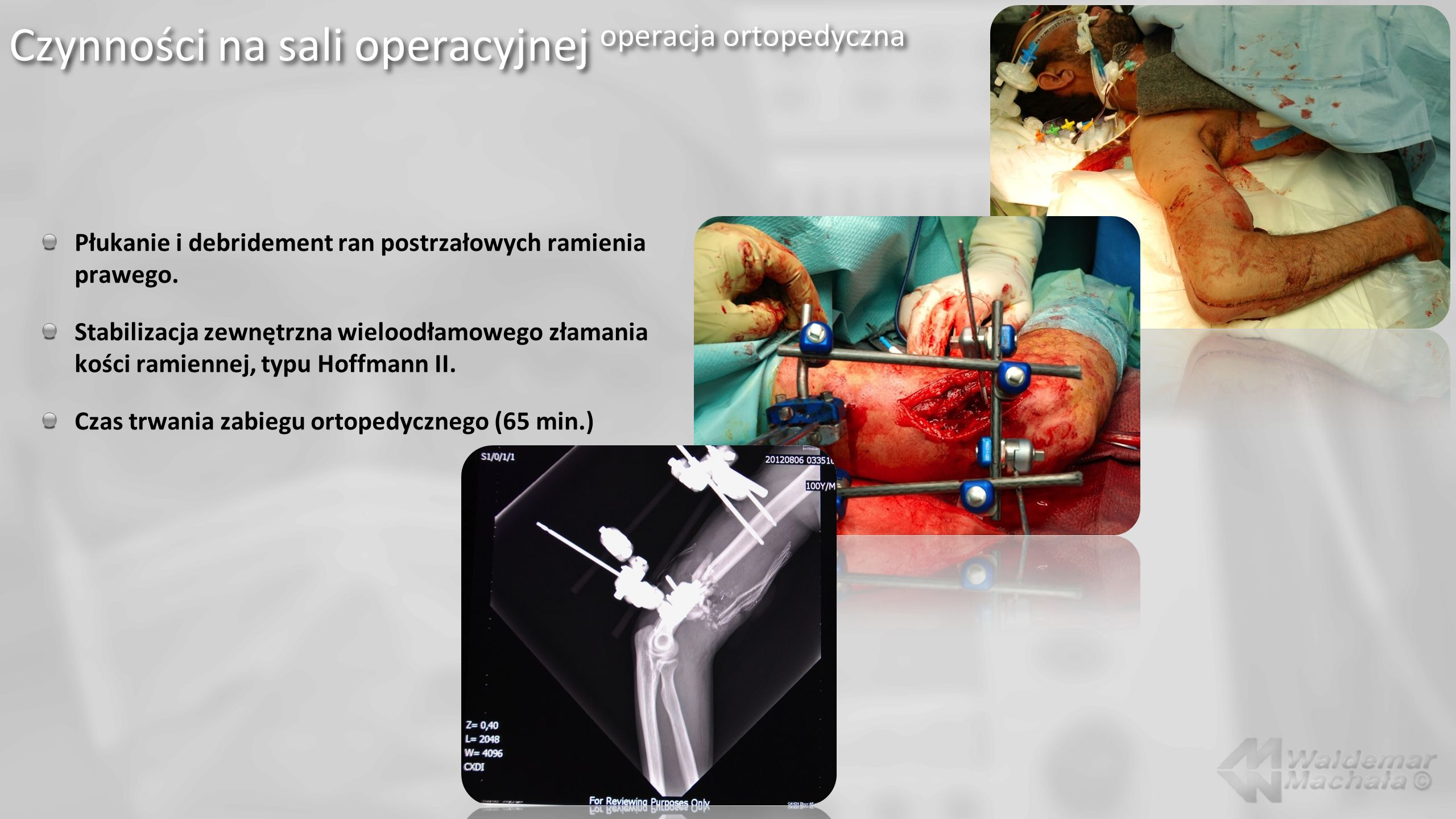 Czynności na sali operacyjnej operacja ortopedyczna