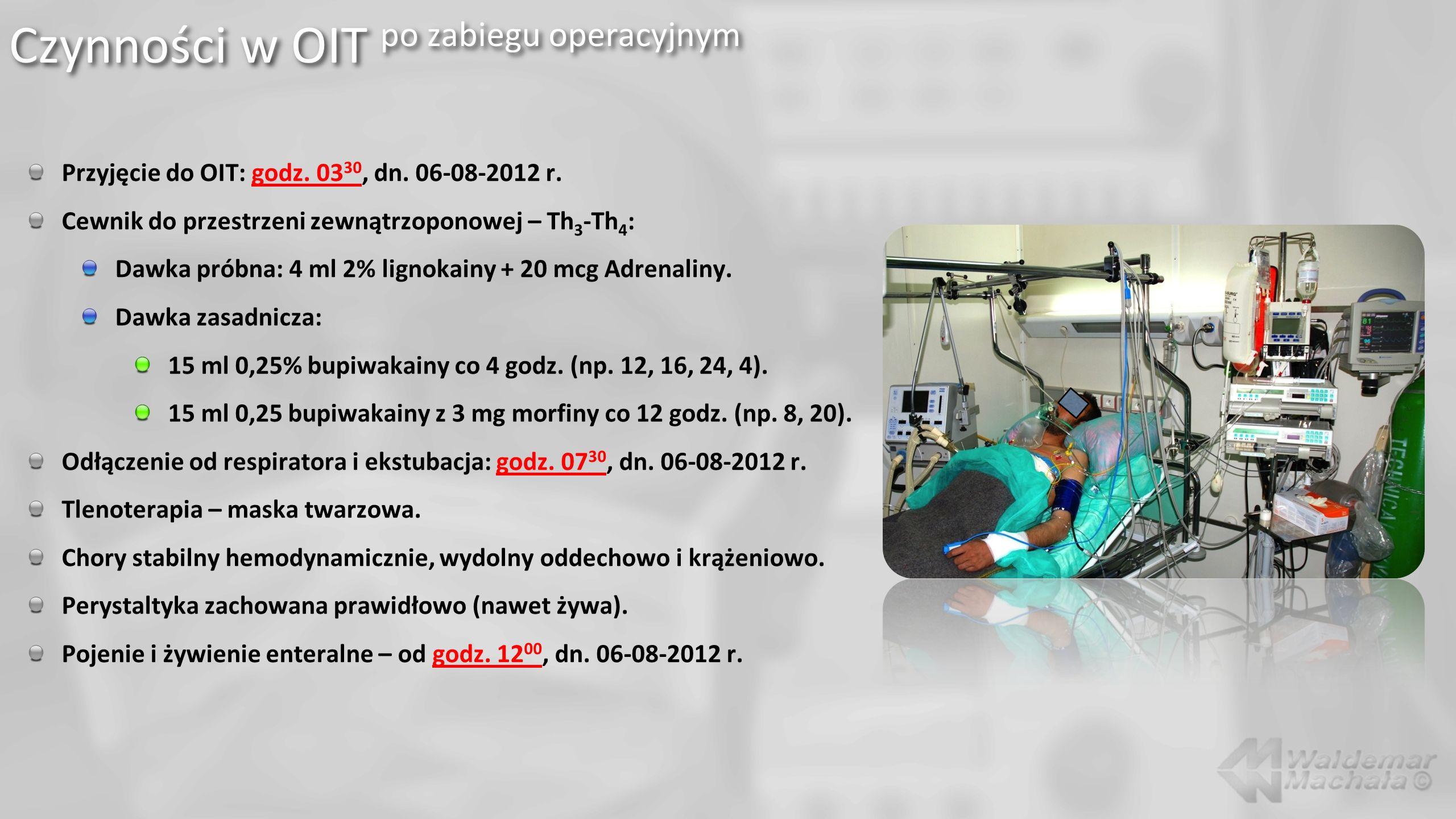 Czynności w OIT po zabiegu operacyjnym