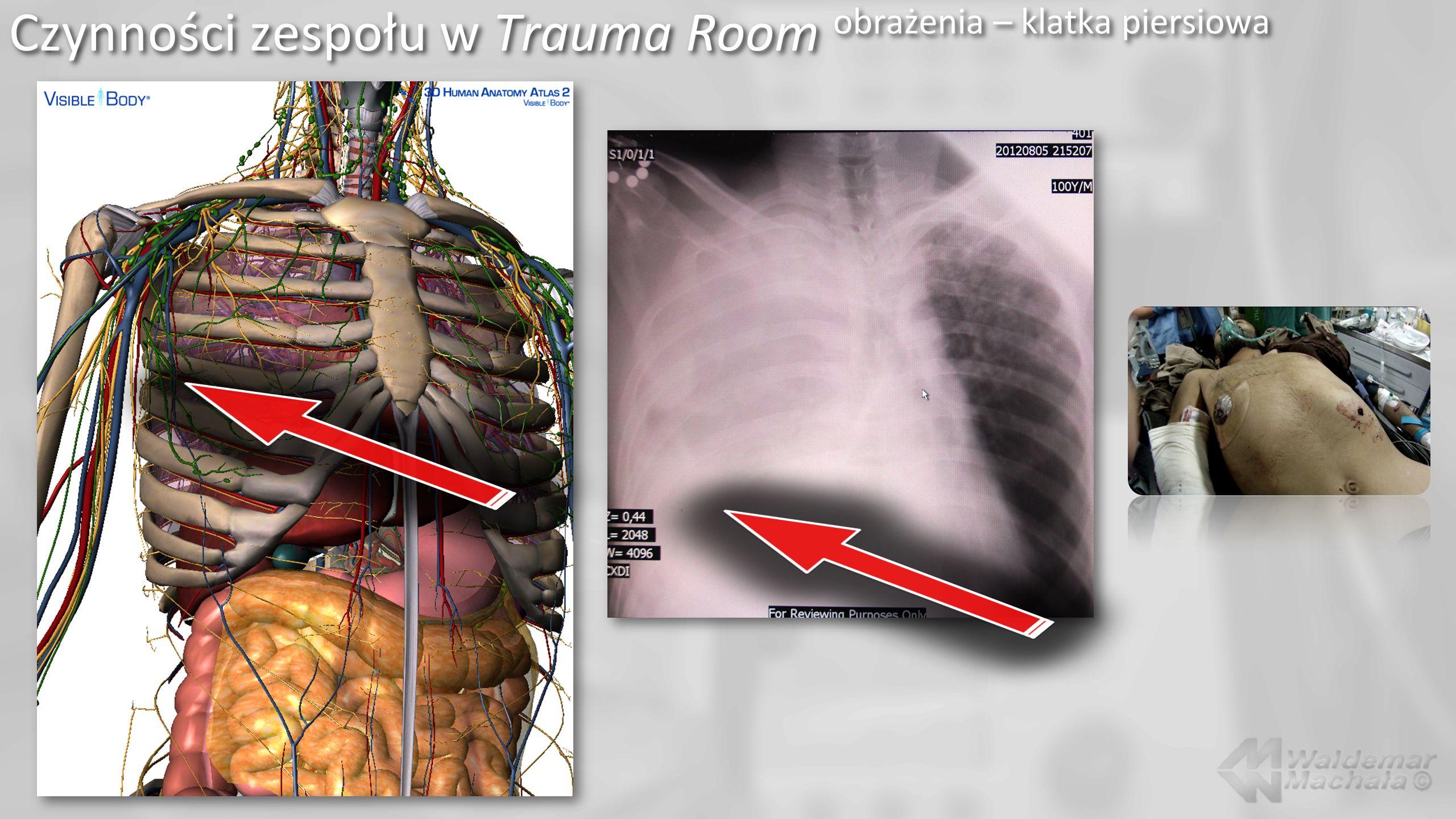 Czynności zespołu w Trauma Room obrażenia – klatka piersiowa