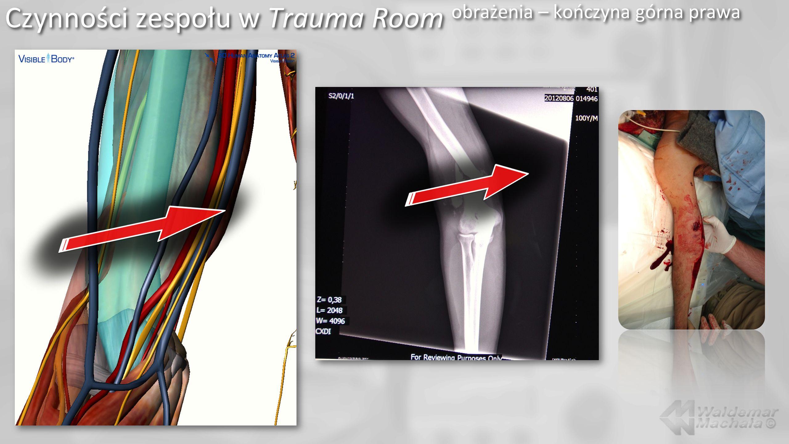 Czynności zespołu w Trauma Room obrażenia – kończyna górna prawa