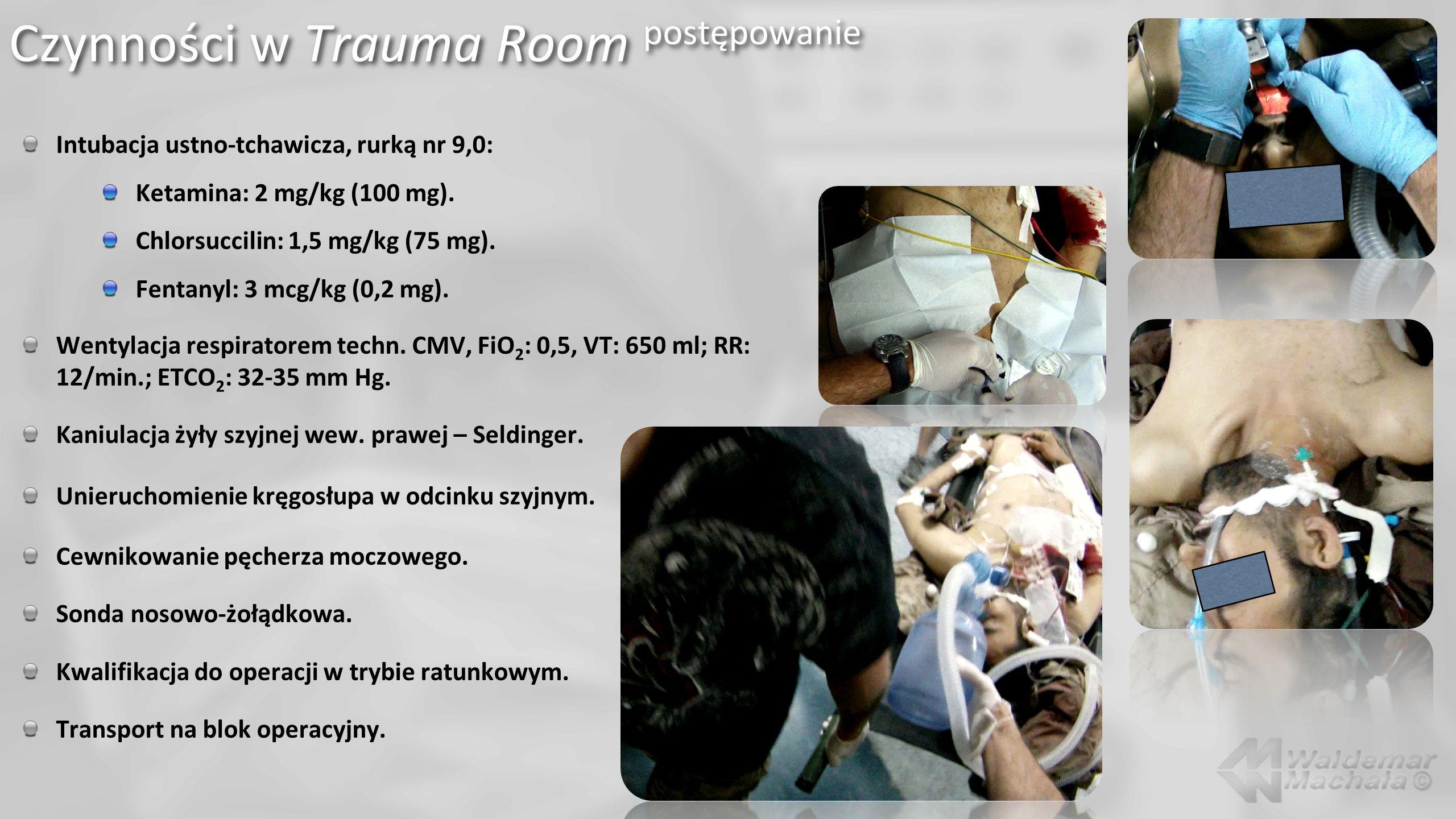 Czynności w Trauma Room postępowanie