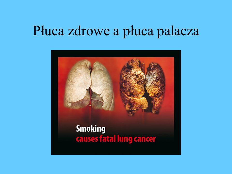 Płuca zdrowe a płuca palacza