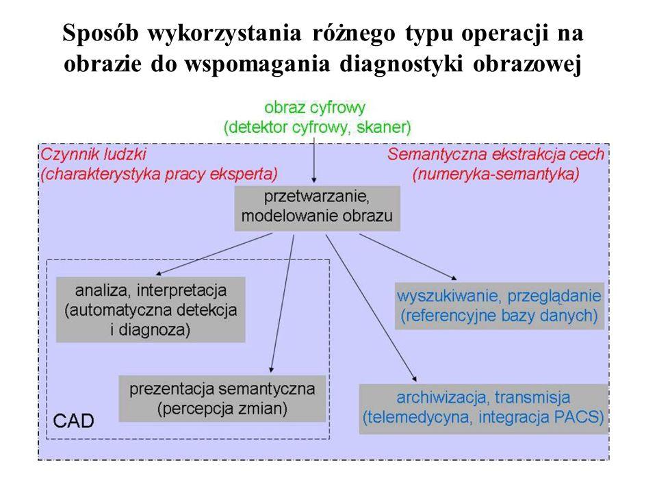 Sposób wykorzystania różnego typu operacji na obrazie do wspomagania diagnostyki obrazowej
