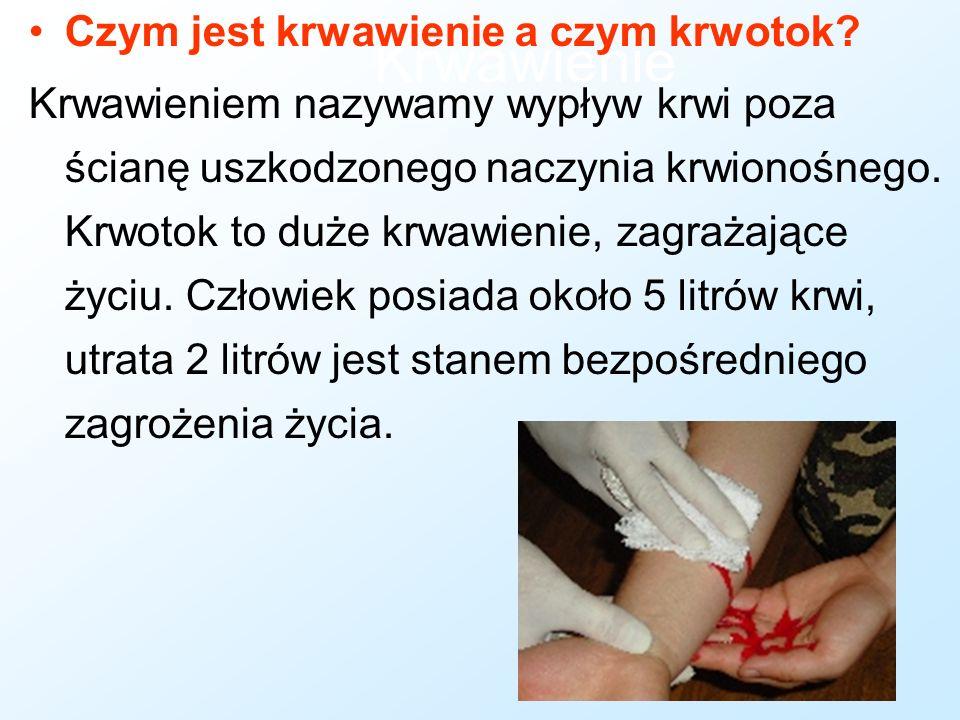 Krwawienie Czym jest krwawienie a czym krwotok