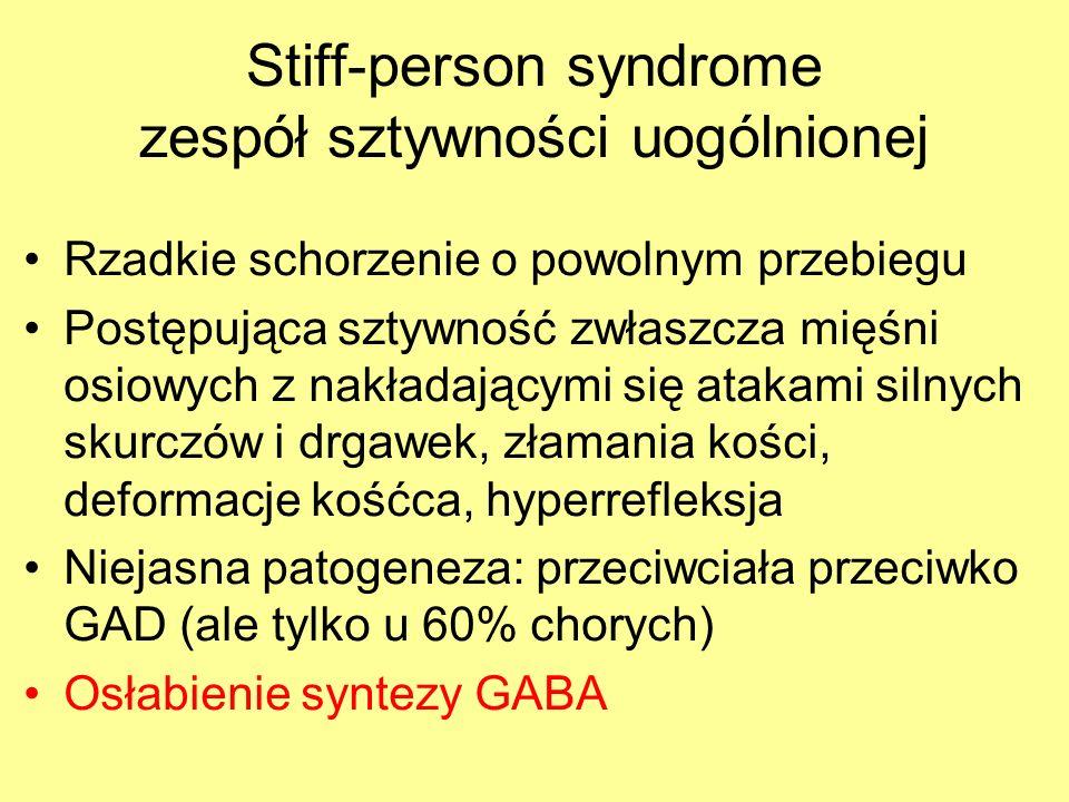 Stiff-person syndrome zespół sztywności uogólnionej