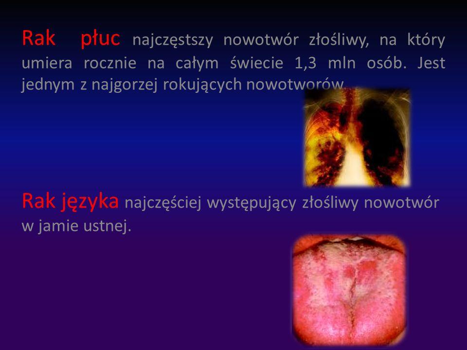 Rak płuc najczęstszy nowotwór złośliwy, na który umiera rocznie na całym świecie 1,3 mln osób. Jest jednym z najgorzej rokujących nowotworów.