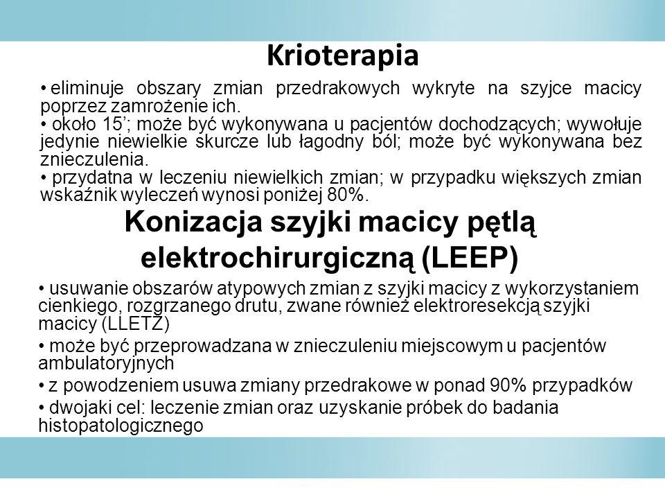 Konizacja szyjki macicy pętlą elektrochirurgiczną (LEEP)