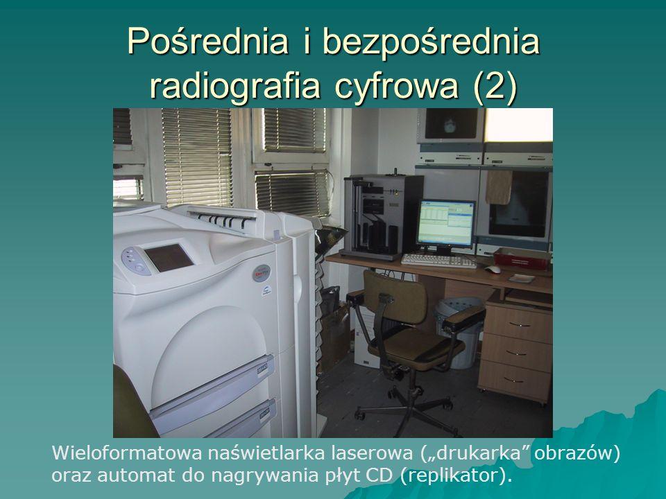 Pośrednia i bezpośrednia radiografia cyfrowa (2)