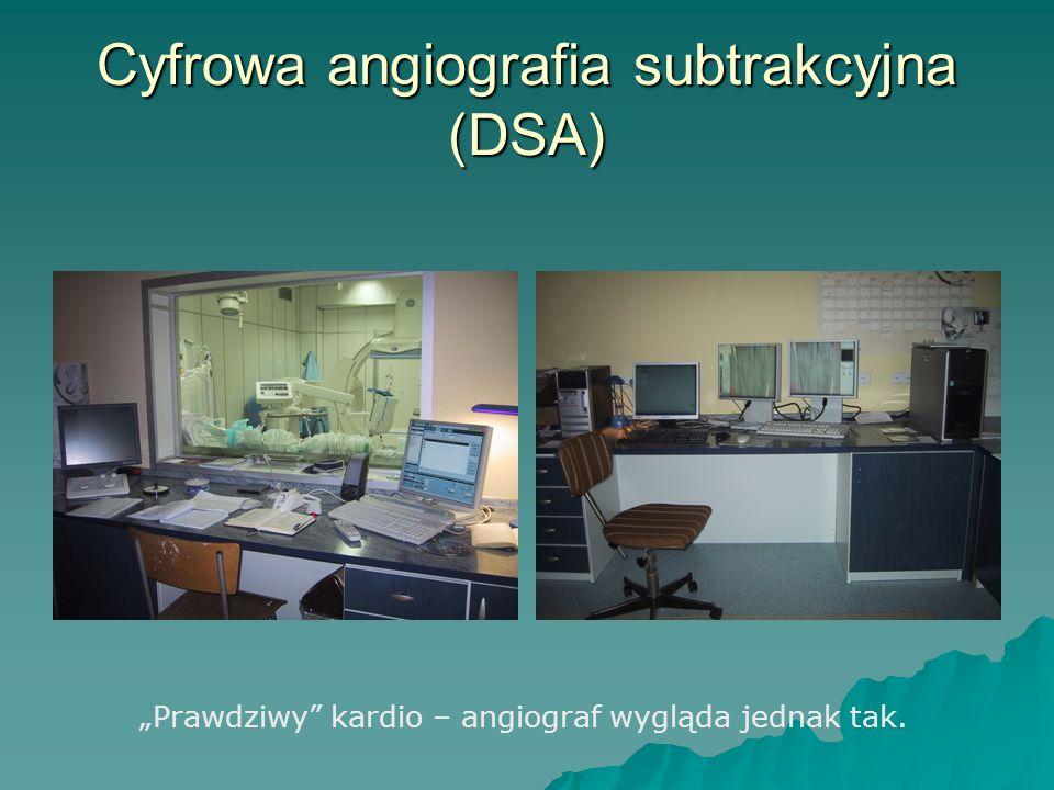 Cyfrowa angiografia subtrakcyjna (DSA)