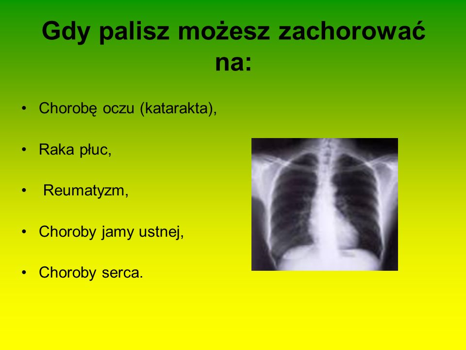 Gdy palisz możesz zachorować na: