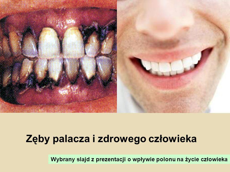 Zęby palacza i zdrowego człowieka