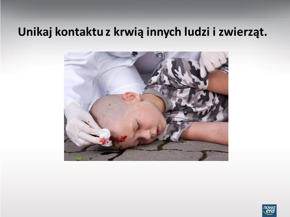 Unikaj kontaktu z krwią innych ludzi i zwierząt.