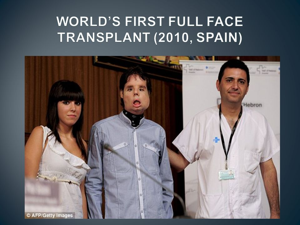 WORLD'S FIRST FULL FACE TRANSPLANT (2010, SPAIN)