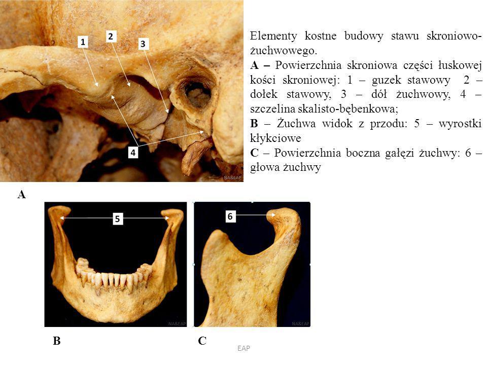 Elementy kostne budowy stawu skroniowo-żuchwowego.