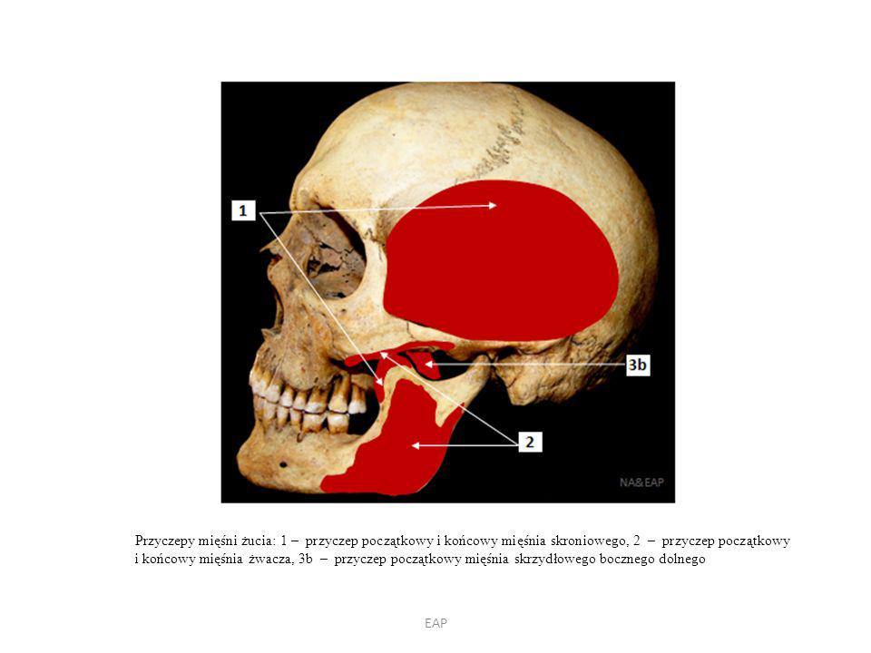 Przyczepy mięśni żucia: 1 – przyczep początkowy i końcowy mięśnia skroniowego, 2 – przyczep początkowy i końcowy mięśnia żwacza, 3b – przyczep początkowy mięśnia skrzydłowego bocznego dolnego