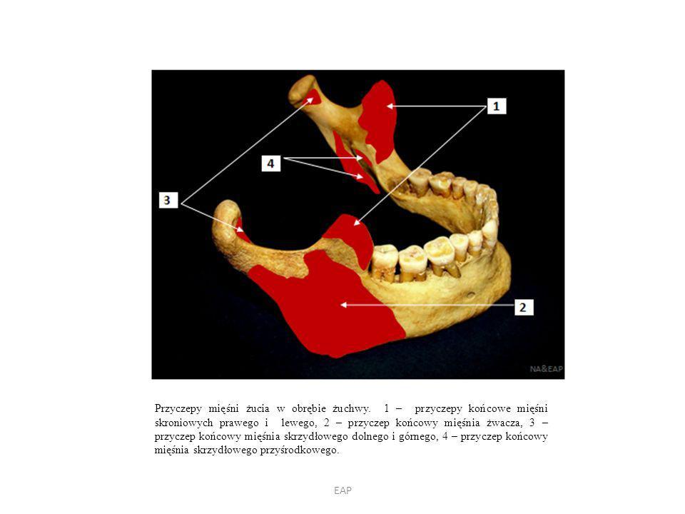Przyczepy mięśni żucia w obrębie żuchwy