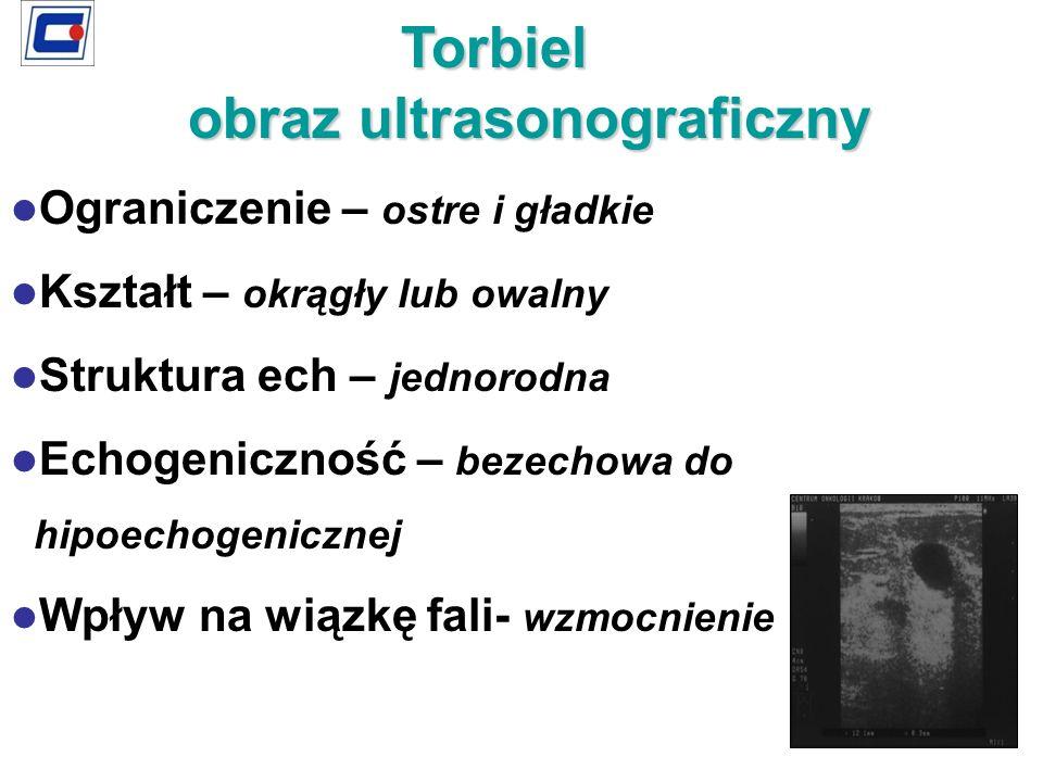 Torbiel obraz ultrasonograficzny