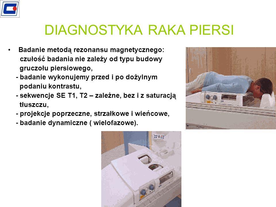 DIAGNOSTYKA RAKA PIERSI
