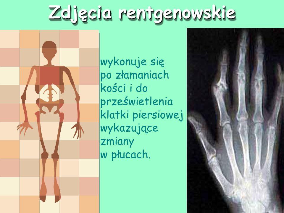 Zdjęcia rentgenowskie