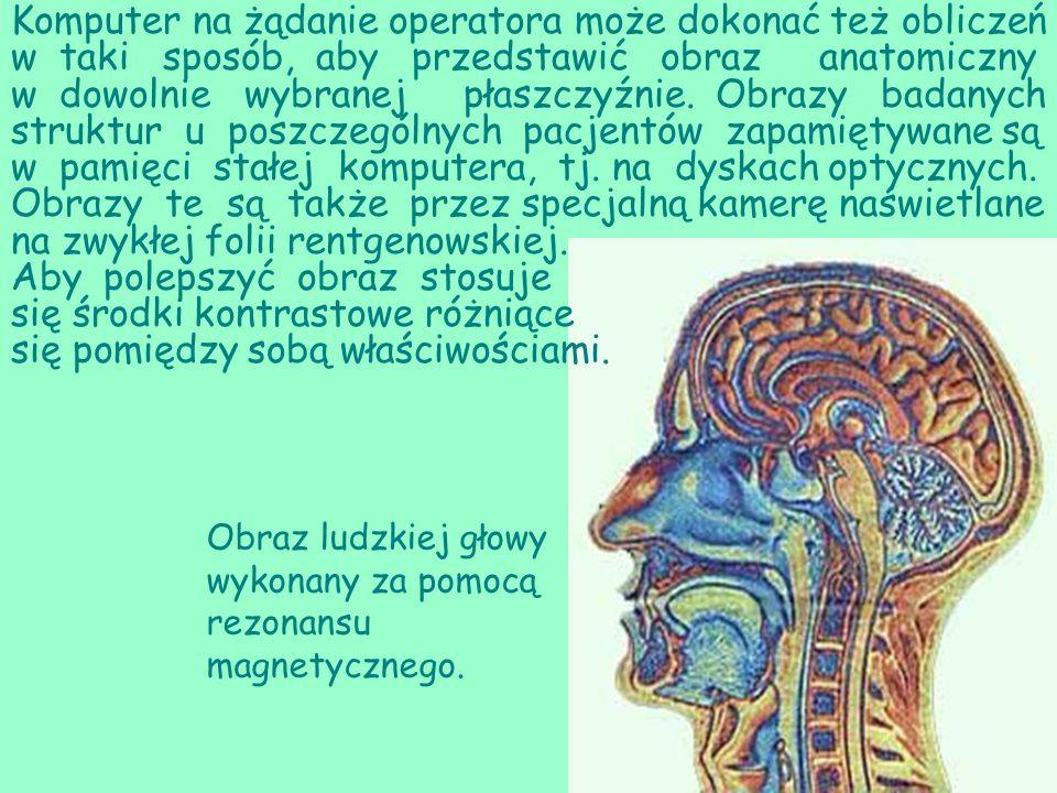 Obraz ludzkiej głowy wykonany za pomocą rezonansu magnetycznego.