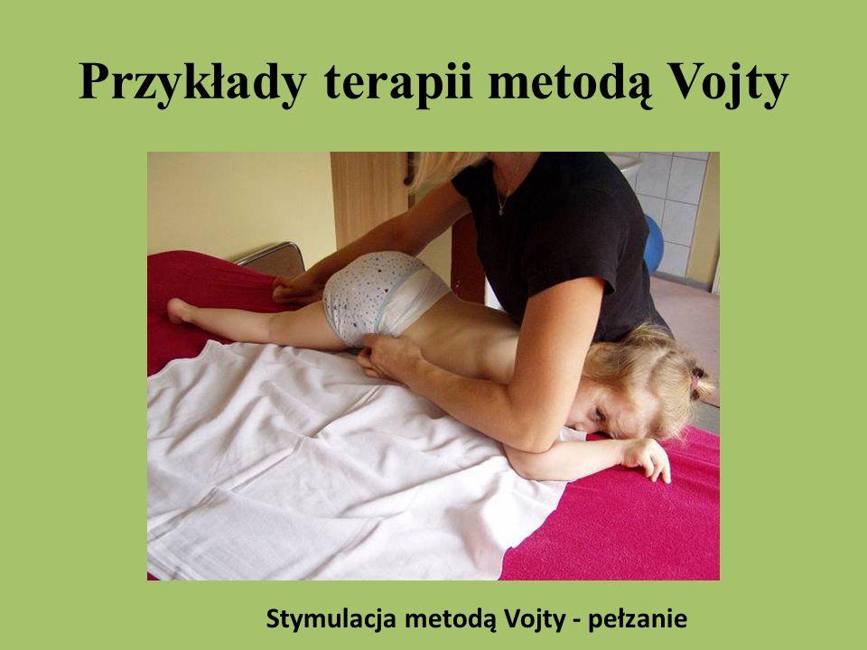 Przykłady terapii metodą Vojty