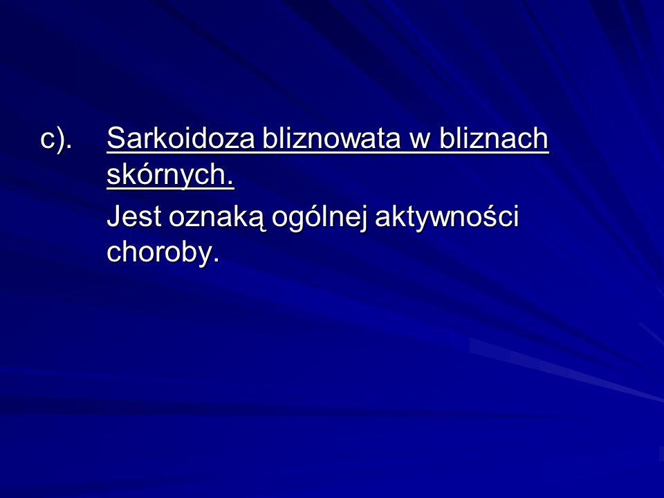 c). Sarkoidoza bliznowata w bliznach skórnych.