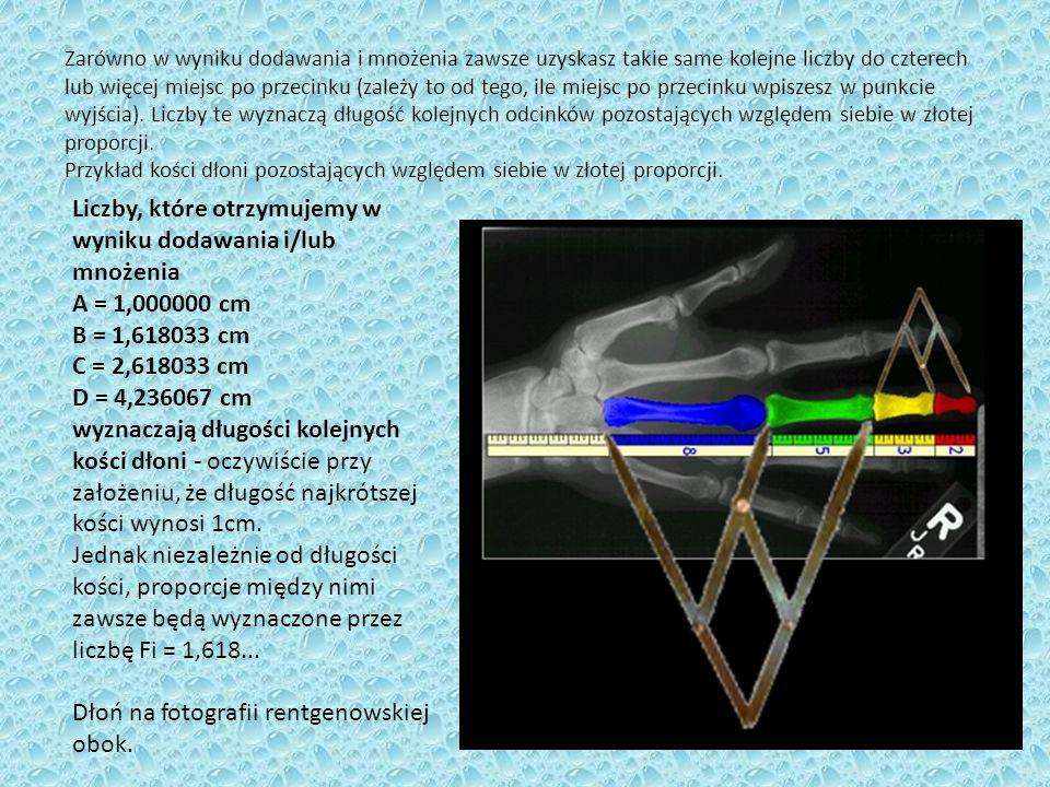 Dłoń na fotografii rentgenowskiej obok.