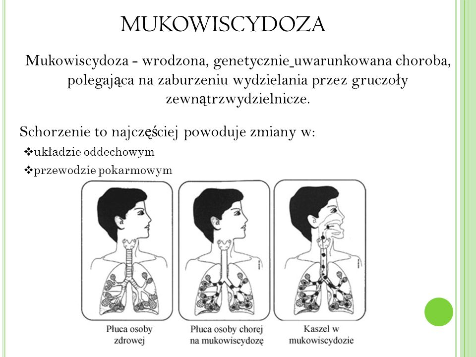 MUKOWISCYDOZA Mukowiscydoza - wrodzona, genetycznie uwarunkowana choroba, polegająca na zaburzeniu wydzielania przez gruczoły zewnątrzwydzielnicze.