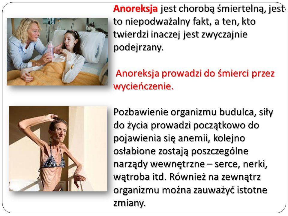 Anoreksja jest chorobą śmiertelną, jest to niepodważalny fakt, a ten, kto twierdzi inaczej jest zwyczajnie podejrzany.