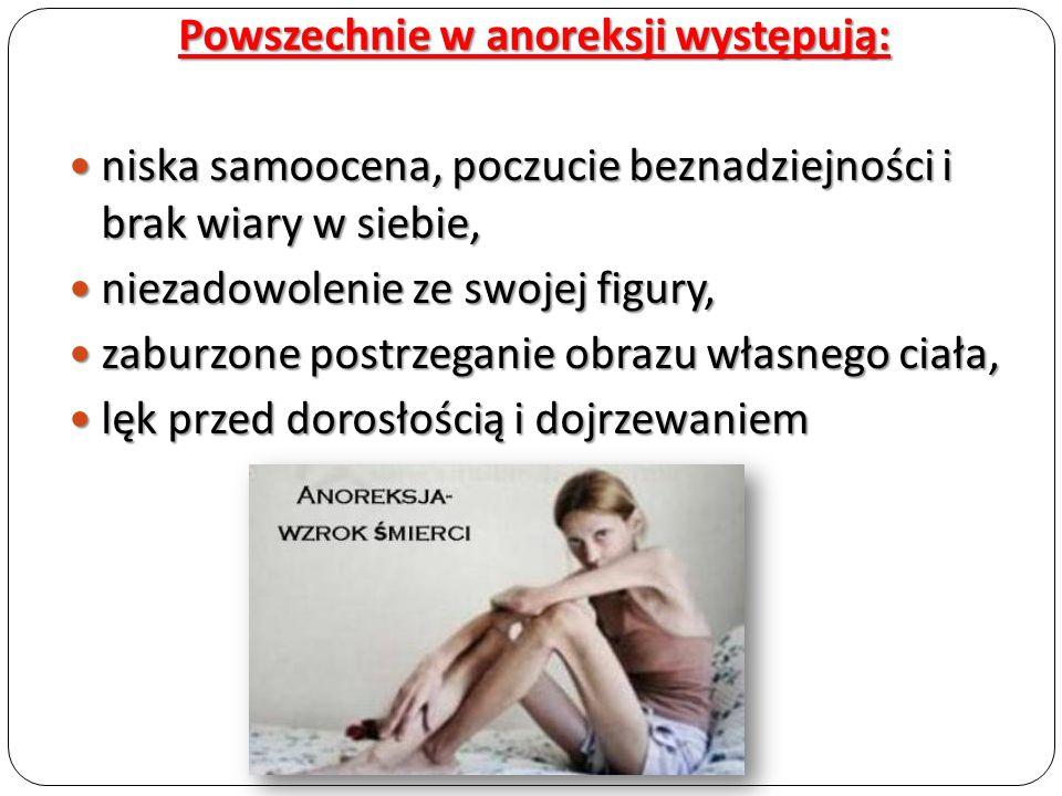 Powszechnie w anoreksji występują: