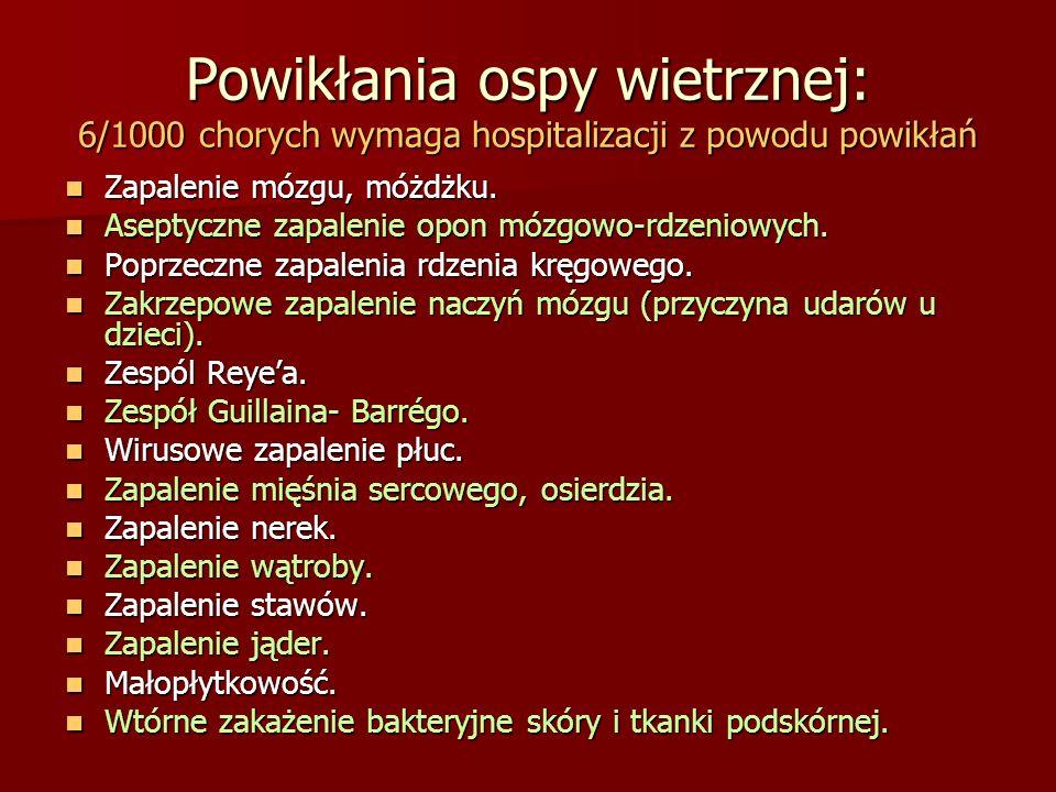Powikłania ospy wietrznej: 6/1000 chorych wymaga hospitalizacji z powodu powikłań