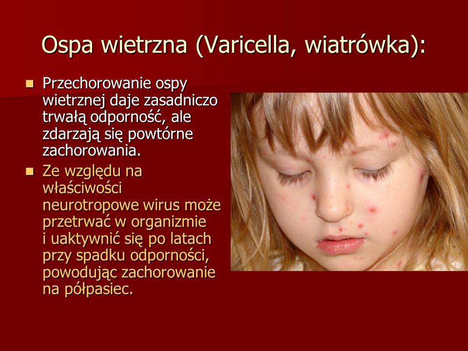 Ospa wietrzna (Varicella, wiatrówka):