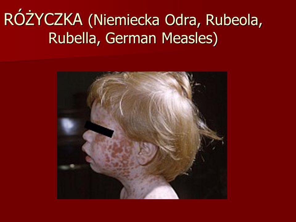 RÓŻYCZKA (Niemiecka Odra, Rubeola, Rubella, German Measles)
