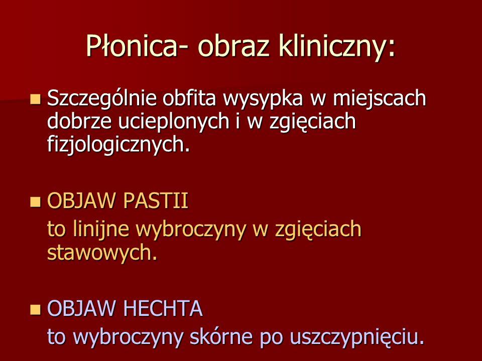 Płonica- obraz kliniczny: