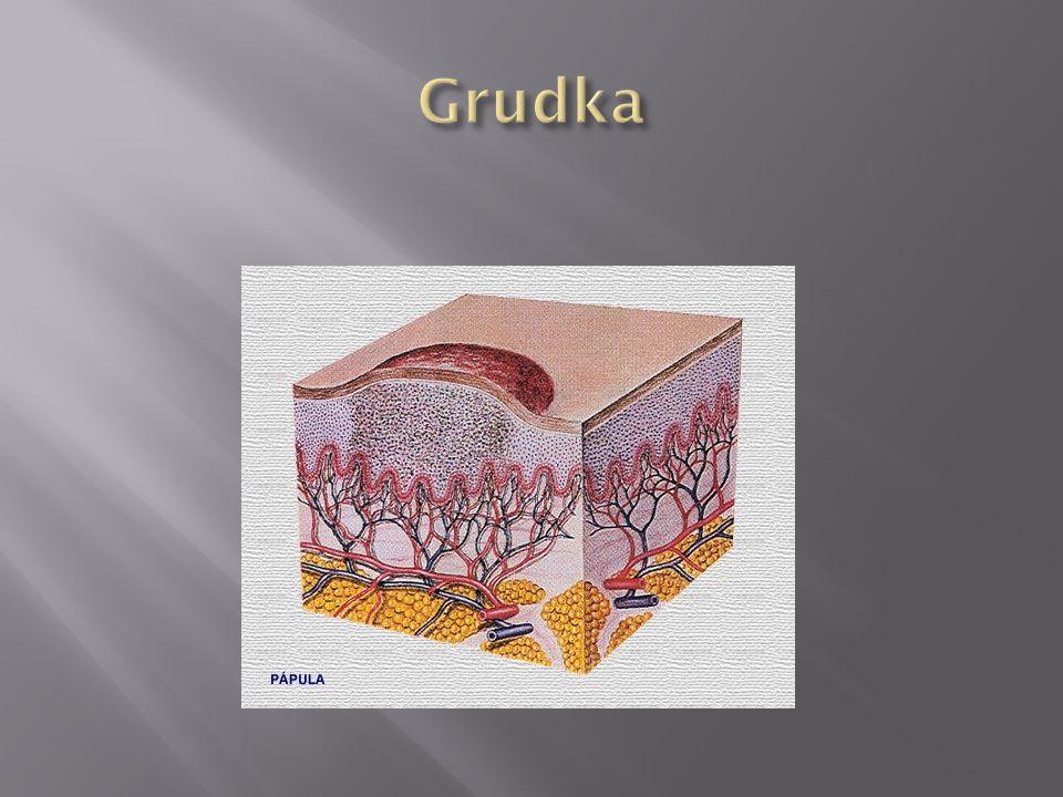 Grudka