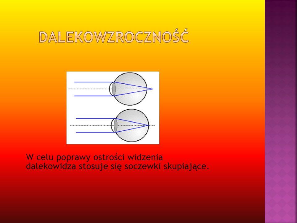 Dalekowzroczność W celu poprawy ostrości widzenia dalekowidza stosuje się soczewki skupiające.