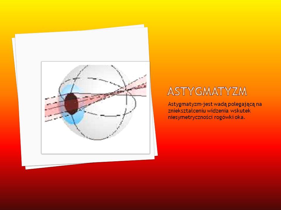 astygmatyzm Astygmatyzm-jest wadą polegającą na zniekształceniu widzenia wskutek niesymetryczności rogówki oka.