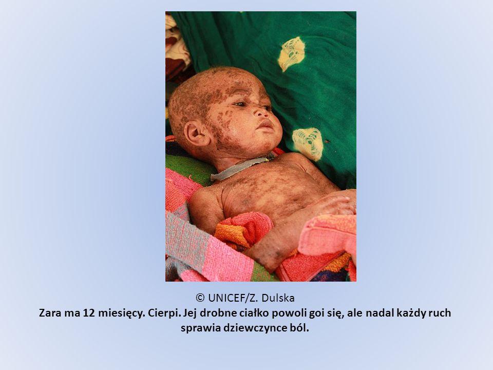 © UNICEF/Z. Dulska Zara ma 12 miesięcy. Cierpi
