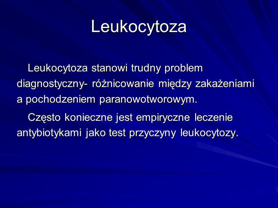 Leukocytoza Leukocytoza stanowi trudny problem diagnostyczny- różnicowanie między zakażeniami a pochodzeniem paranowotworowym.