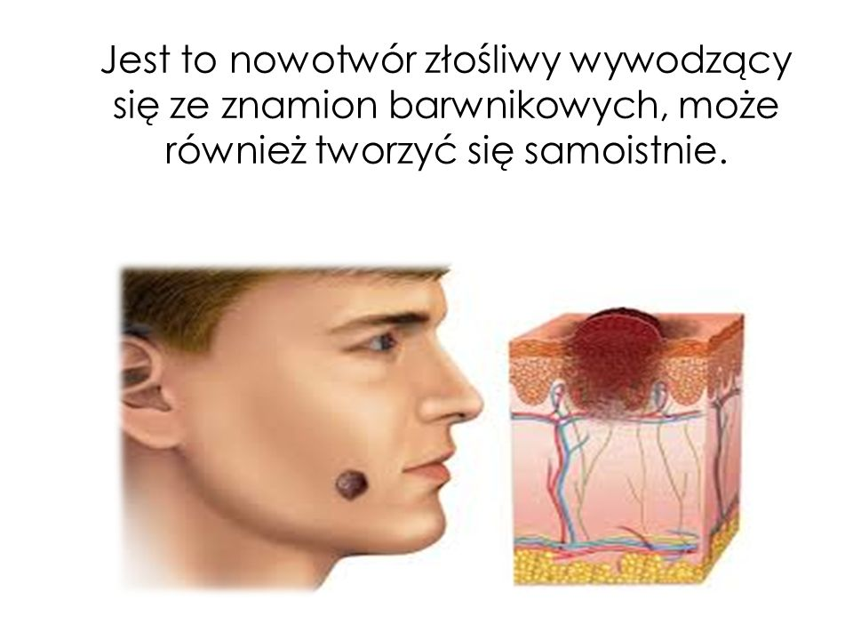 Jest to nowotwór złośliwy wywodzący się ze znamion barwnikowych, może również tworzyć się samoistnie.