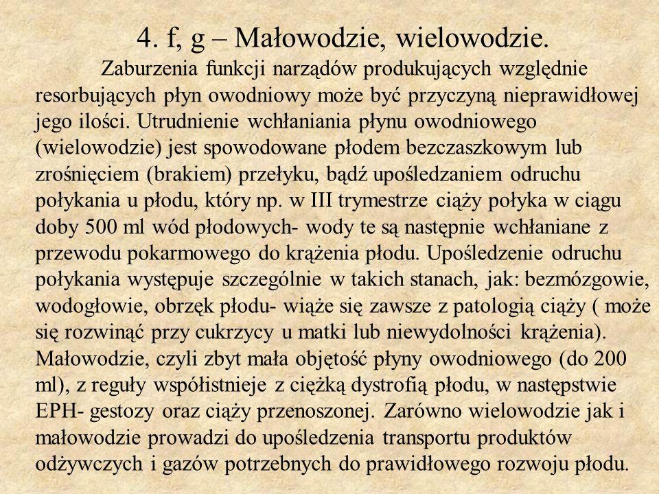 4. f, g – Małowodzie, wielowodzie.