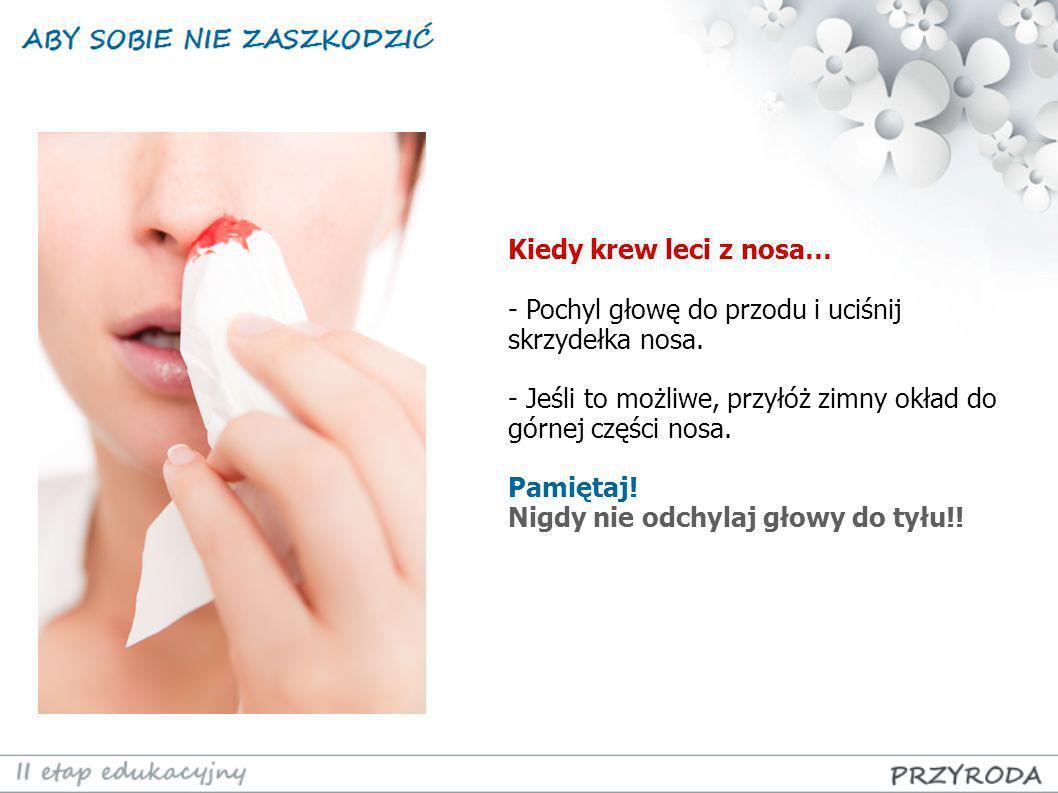 Kiedy krew leci z nosa… - Pochyl głowę do przodu i uciśnij skrzydełka nosa. - Jeśli to możliwe, przyłóż zimny okład do górnej części nosa.