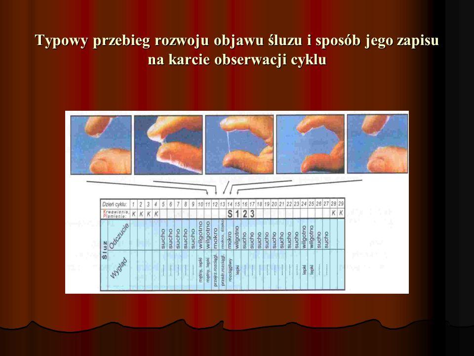 Typowy przebieg rozwoju objawu śluzu i sposób jego zapisu na karcie obserwacji cyklu