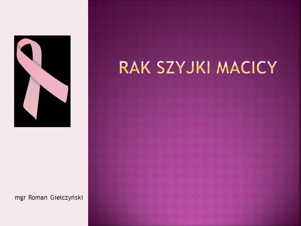 Rak szyjki macicy mgr Roman Giełczyński