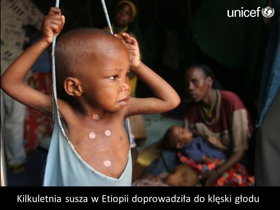 Kilkuletnia susza w Etiopii doprowadziła do klęski głodu