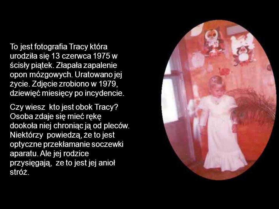 To jest fotografia Tracy która urodziła się 13 czerwca 1975 w ścisły piątek. Złapała zapalenie opon mózgowych. Uratowano jej życie. Zdjęcie zrobiono w 1979, dziewięć miesięcy po incydencie.
