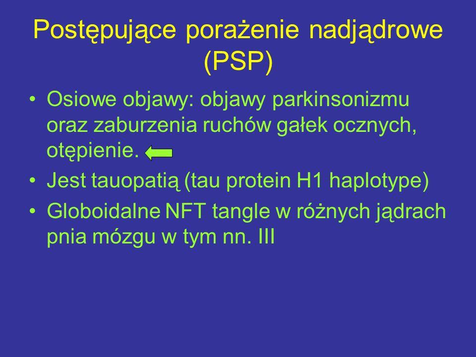Postępujące porażenie nadjądrowe (PSP)
