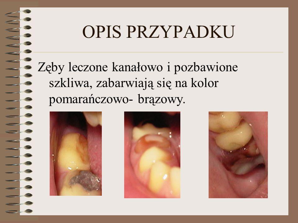 OPIS PRZYPADKUZęby leczone kanałowo i pozbawione szkliwa, zabarwiają się na kolor pomarańczowo- brązowy.
