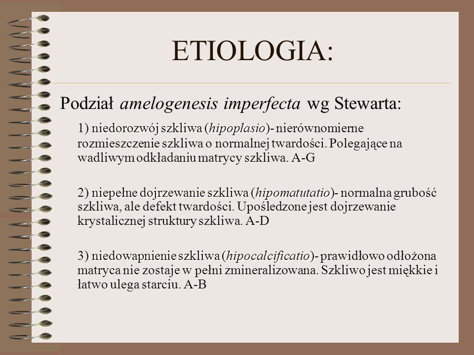 ETIOLOGIA: Podział amelogenesis imperfecta wg Stewarta: